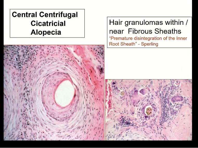Is There a link between CCCA & Fibroids??